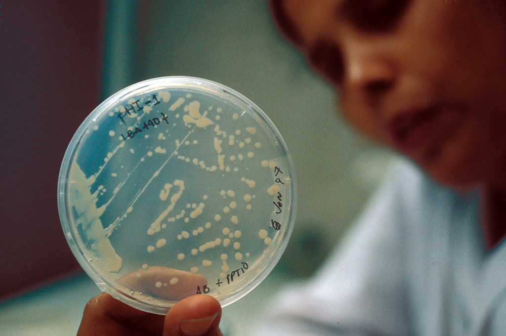 bacteria sample inside petri dish for biotechnology study; rice genes